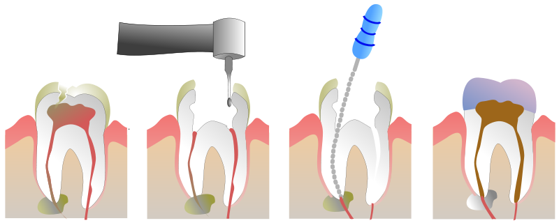 Gorgeous Smile Dental - Root Canal
