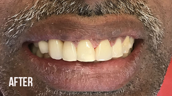 Gorgeous Smile Dental - Crown After 9