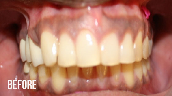 Gorgeous Smile Dental - Crown Before 9.1