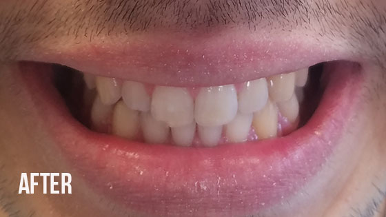 Gorgeous Smile Dental - Invisalign After 6