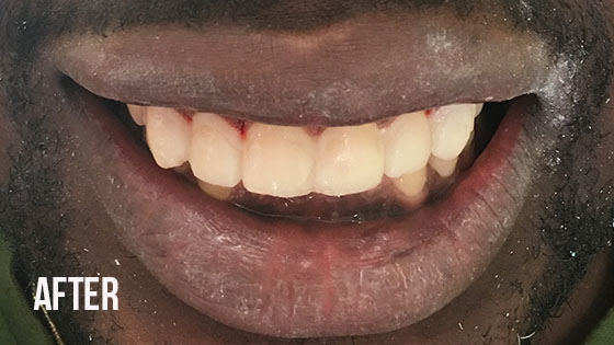 Gorgeous Smile Dental - Lumineers After 3