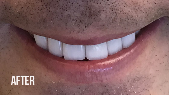 Gorgeous Smile Dental - Lumineers After 5