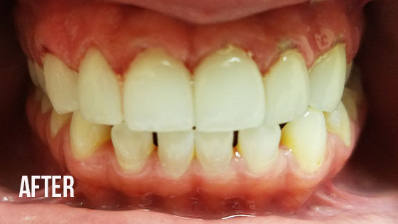 Gorgeous Smile Dental - Lumineers After 8.1