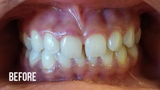 Gorgeous Smile Dental - Lumineers Before 2.1
