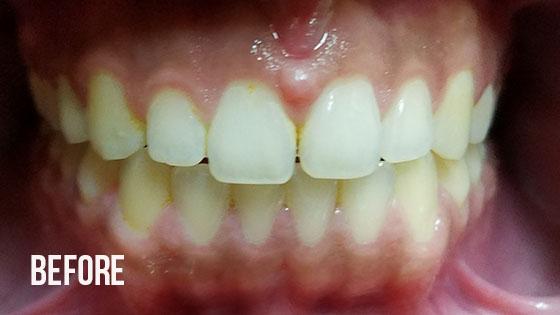 Gorgeous Smile Dental - Lumineers Before 7.1