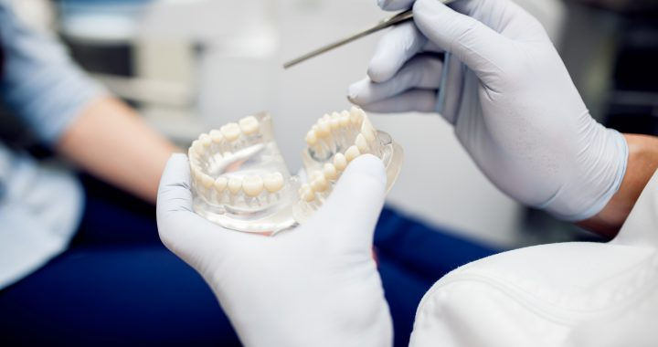 General Dentistry - Dentures and Partials - Gorgeous Smile Dental Clinic - San Jose and Newark, California