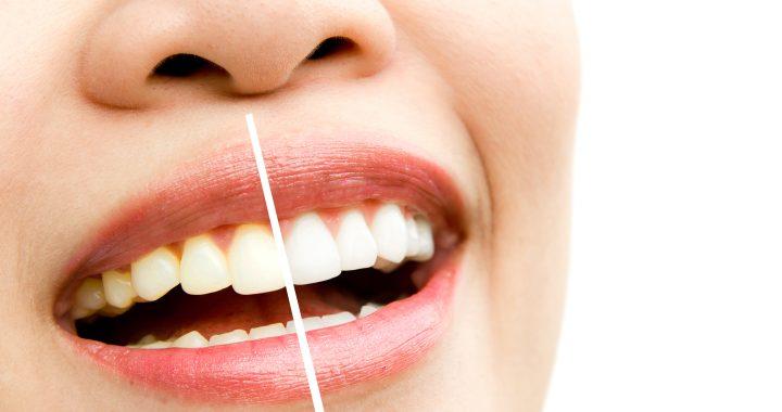 Sapphire Tooth Whitening