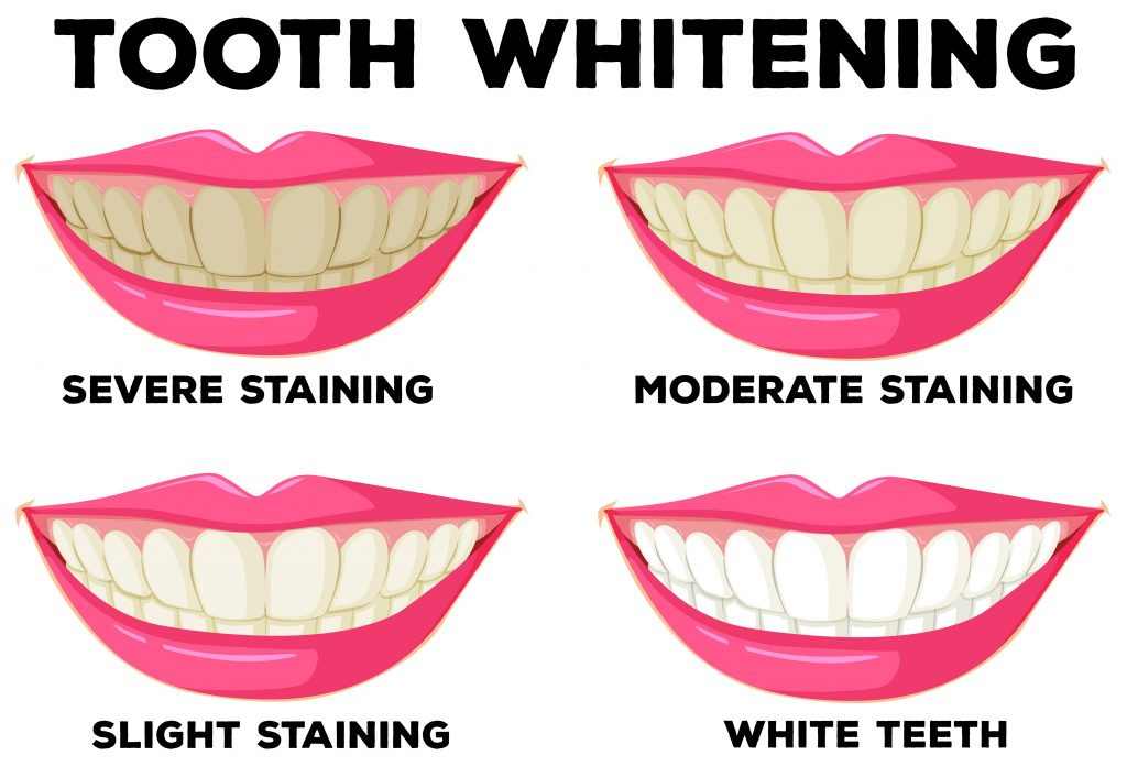 Teeth Whitening in Newark