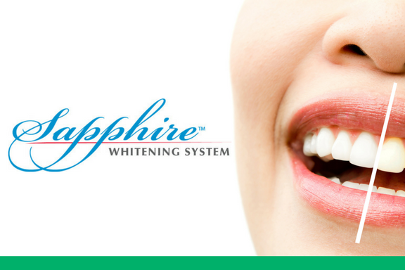 Featured Services - Sapphire Professional Teeth Whitening - Gorgeous Smile Dental - San Jose and Newark, California