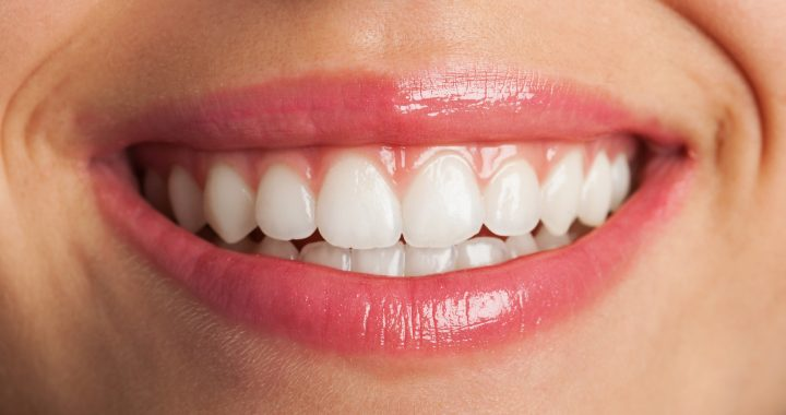 Services - Tooth Fillings - Gorgeous Smile Dental Clinic - San Jose and Newark, California