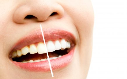 Services - Sapphire Professional Teeth Whitening - Gorgeous Smile Dental Clinic - San Jose and Newark, California