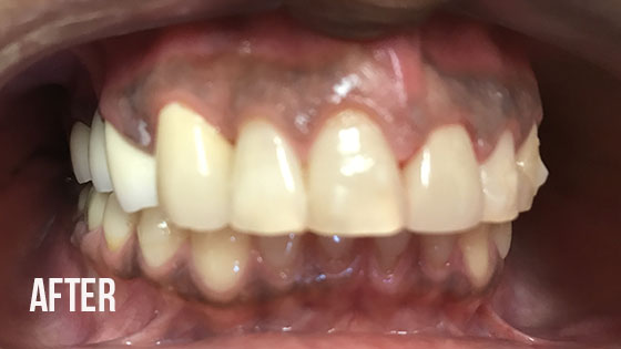 Gorgeous Smile Dental - Crown After 9.1