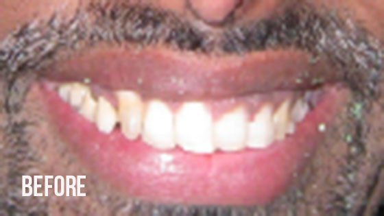 Gorgeous Smile Dental - Crown Before 9