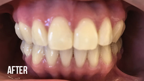 Gorgeous Smile Dental - Invisalign After 4.1