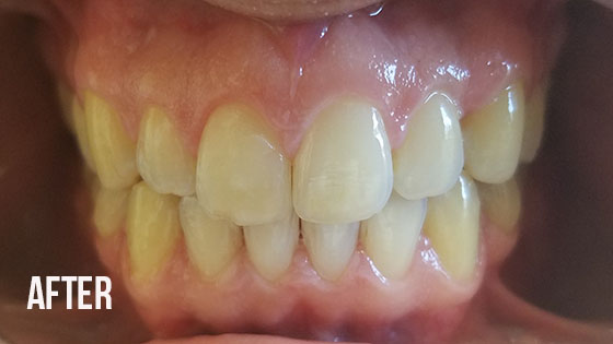 Gorgeous Smile Dental - Invisalign After 6.1