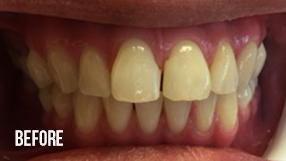 Gorgeous Smile Dental - Invisalign Before 4.1
