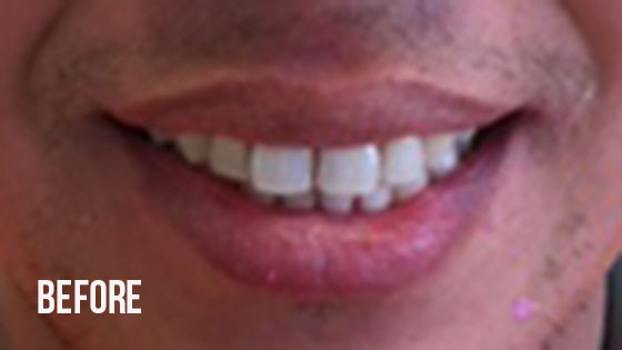 Gorgeous Smile Dental - Invisalign Before 4