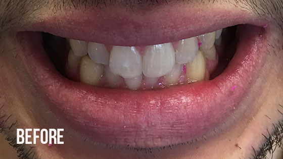 Gorgeous Smile Dental - Invisalign Before 6