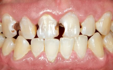 Affordable Emax Crowns in San Jose Ca and Newark Ca