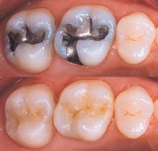 ATTACHMENT DETAILS How-to-take-care-of-tooth-filling.jpg