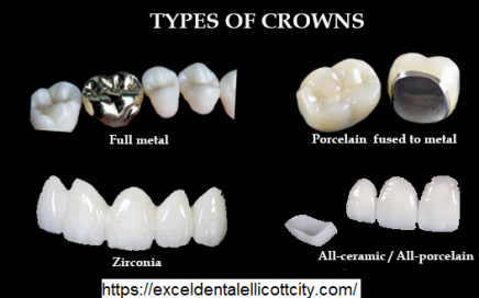 Types-of-Dental-Crown.png